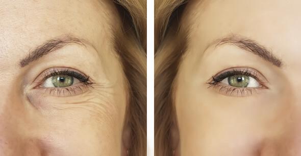 Botox Treatments At Durrheim And Associates Dental Clinic In Marlborough NZ