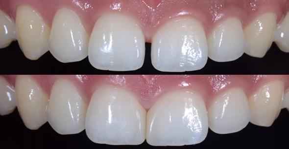 Cosmetic Dentistry Comparison At Durrheim And Associates Dental Clinic In Marlborough NZ