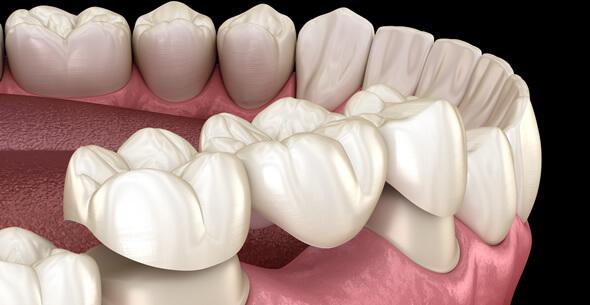 Dental Bridge Treatments At Durrheim And Associates Dental Clinic In Marlborough NZ