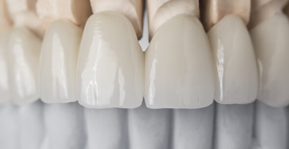 Dental Crown Treatments At Durrheim And Associates Dental Clinic In Marlborough NZ
