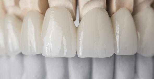 Crown And Bridge Dentistry At Durrheim And Associates Dental Clinic In Marlborough NZ