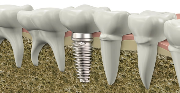Dental Implants At Durrheim And Associates Dental Clinic In Marlborough NZ