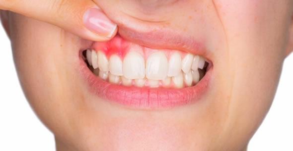 Gingivitis Treatments At Durrheim And Associates Dental Clinic In Marlborough NZ