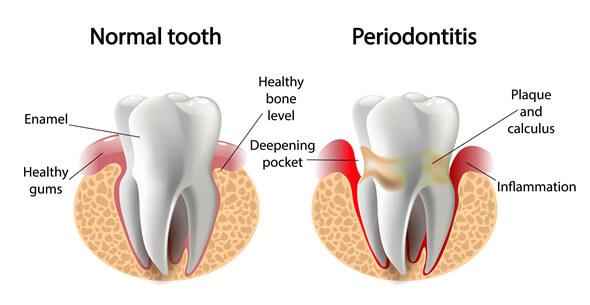 Gum Disease Treatments At Durrheim And Associates Dental Clinic In Marlborough NZ