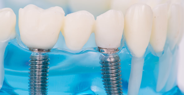 Implant Bridge At Durrheim And Associates Dental Clinic In Marlborough NZ