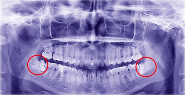 Oral X Ray For Extraction At Durrheim And Associates Dental Clinic In Marlborough NZ