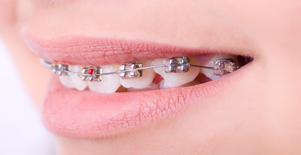 Orthodontics At Durrheim And Associates Dental Clinic In Marlborough NZ