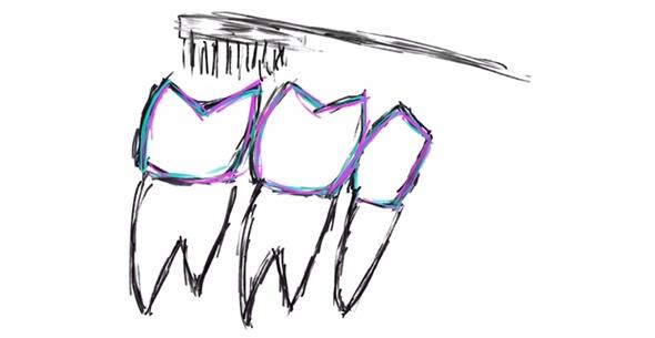 Preventative Dentistry At Durrheim And Associates Dental Clinic In Marlborough NZ