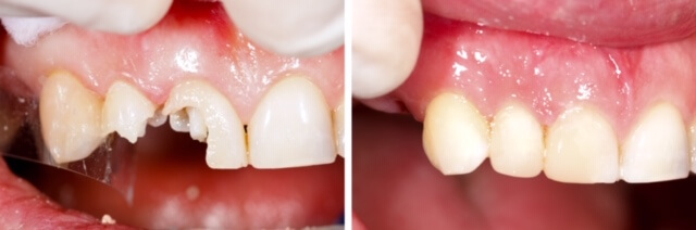 Restorative Dentistry With Composite Fillings At Durrheim And Associates Dental Clinic In Marlborough NZ