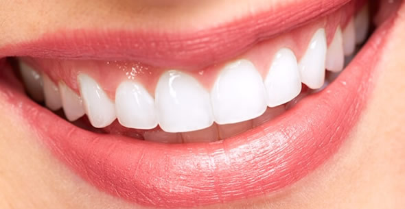 Teeth Whitening At Durrheim And Associates Dental Clinic In Marlborough NZ