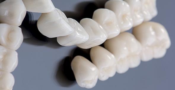 Dental Crown And Bridge Work At Durrheim And Associates Dental Clinic In Marlborough NZ