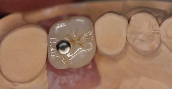 Dental Implant Process 01 At Durrheim And Associates Dental Clinic In Marlborough NZ