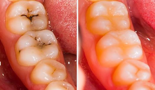 Restorative Dentistry With White Fillings At Durrheim And Associates Dental Clinic In Marlborough NZ